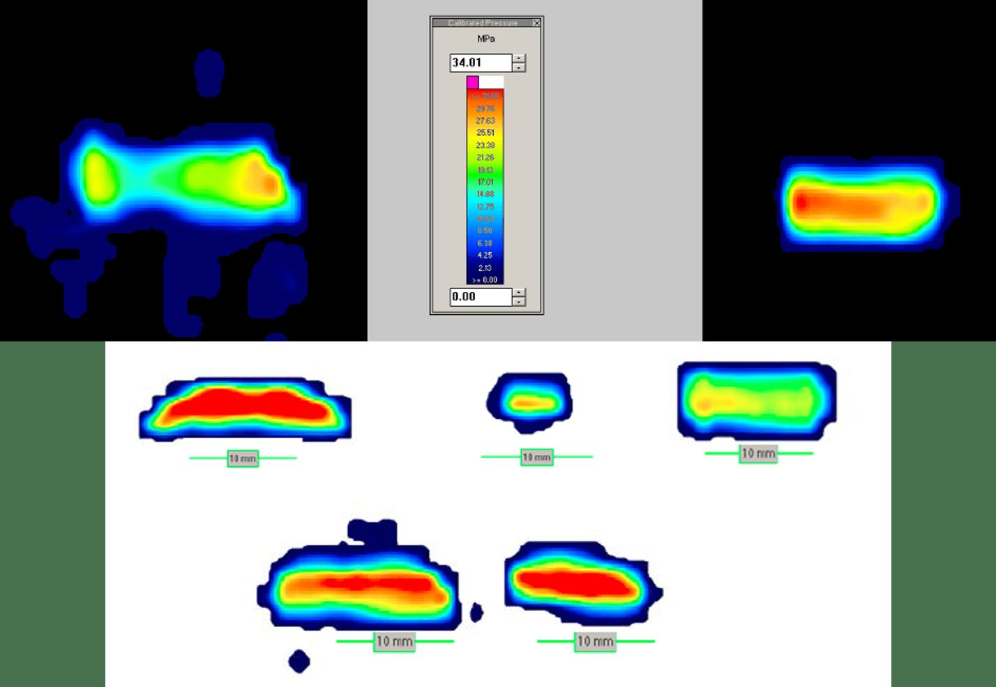 Knee Implant Tekscan results