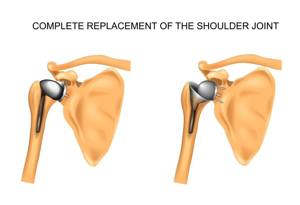 Anatomic and Reverse Shoulder Replacements