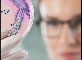 Pharmaceutical CMC Product Development Microbiological