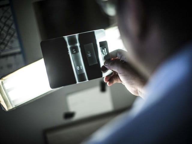 Xray Radiographic Inspection